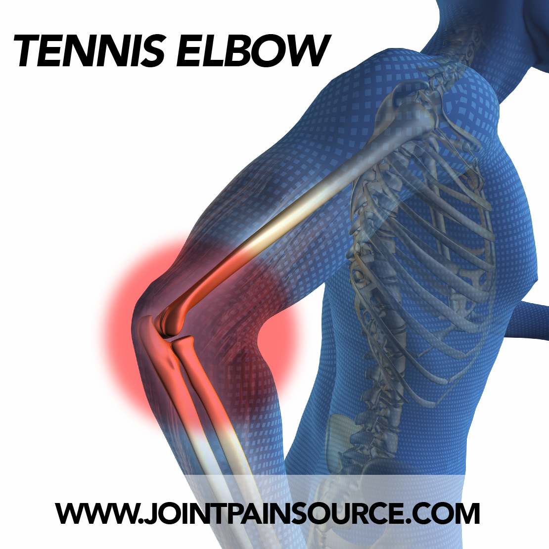 Joint Pain from Tennis Elbow « Joint Pain Source